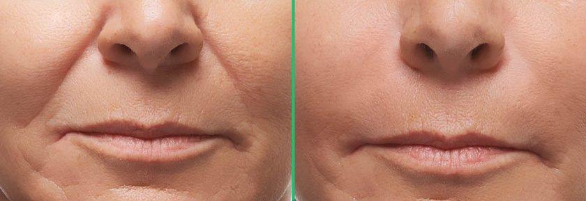 фото до и после контурной пластики (носогубка)