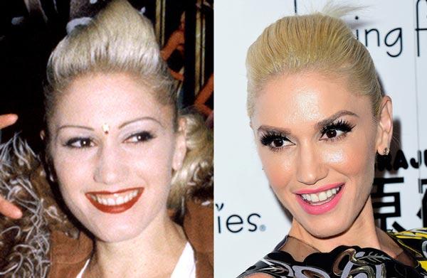 Гвен Стефани (Gwen Stefani) до и после