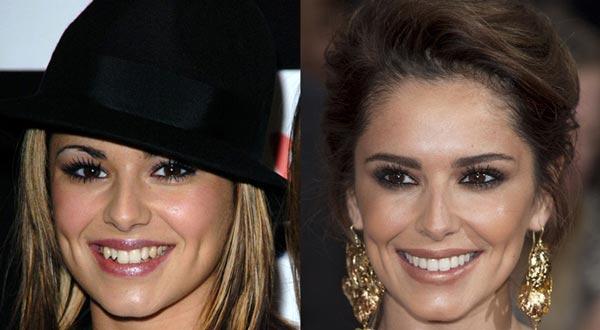 Шерил (Cheryl) до и после