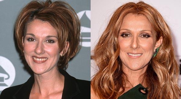 Селин Дион (Céline Dion) до и после
