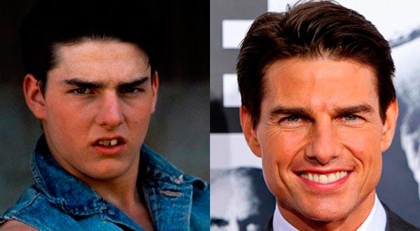Том Круз (Tom Cruise) до и после