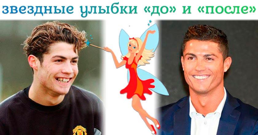 звездные улыбки до и после