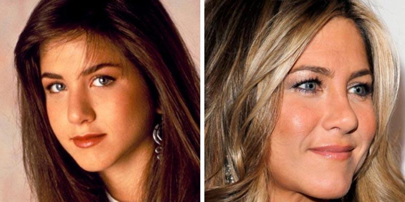 фото ринопластики Дженнифер Энистон до и после