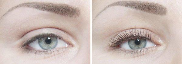 фото до и после нанесения сыворотки с ботоксом