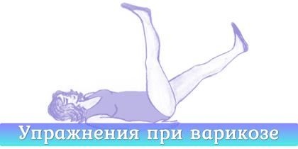 Гимнастические упражнения при варикозе