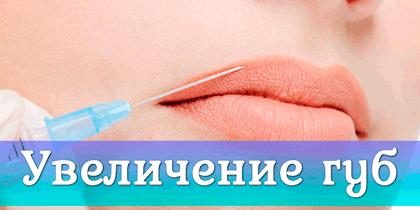 увеличение губ гиалуронкой