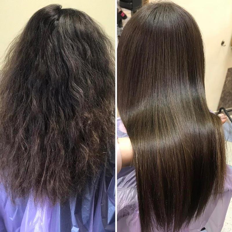 до и после восстановления коллагеном