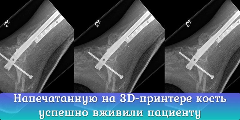 Напечатанную на 3D-принтере берцовую кость вживили пациенту