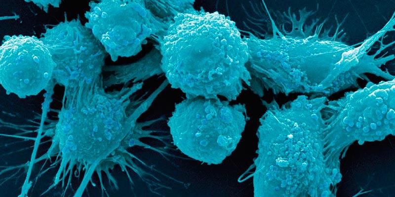 Найден способ «усыплять» раковые клетки