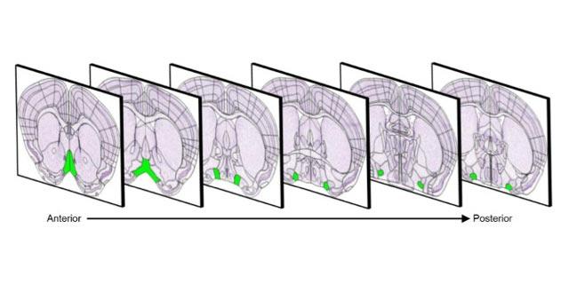 Расположение диагональной полоски Брока