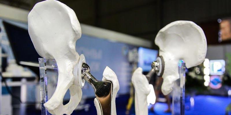 Созданы керамические импланты, которые срастаются с костями