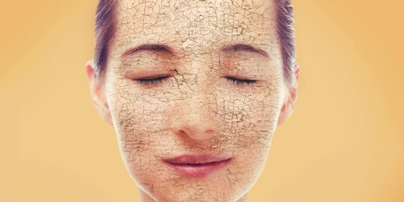 Как восстановить обезвоженную кожу лица и отличить от сухой