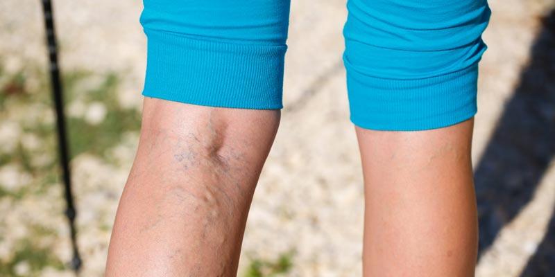 Откуда берётся варикоз на ногах и как его лечить