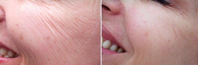 Фото до и после биоревитализации лица