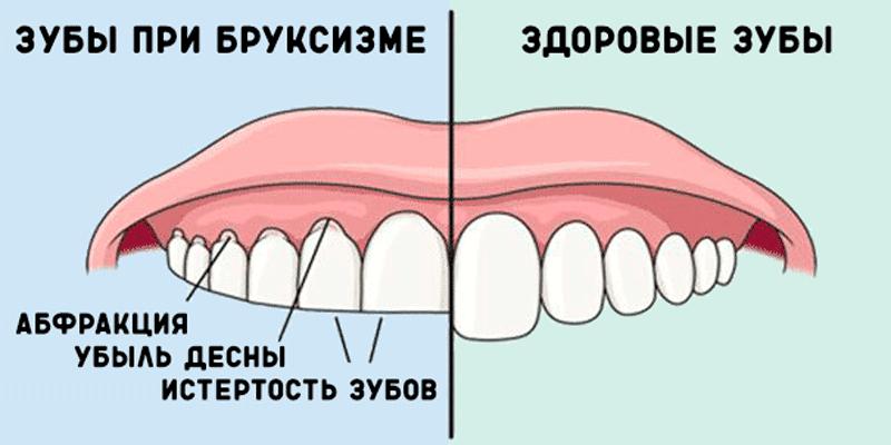 бруксизм повреждает зубы
