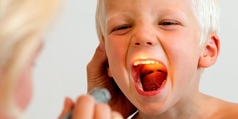 Аденоиды у детей: симптомы, причины, степени, лечение