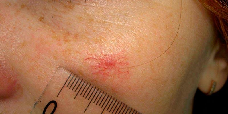 фото лопнувшего купероза