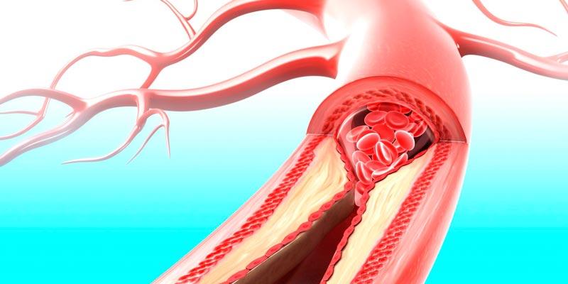 Атеросклероз: симптомы, виды, лечение