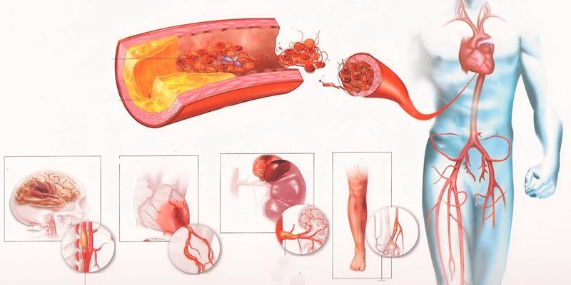 Атеросклероз: виды