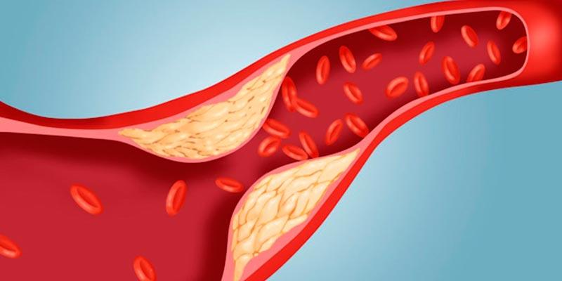 Атеросклероз: профилактика