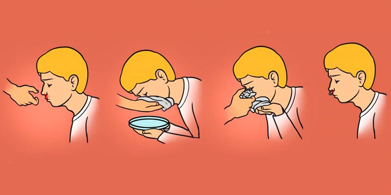 Запрокидывание головы при носовом кровотечении
