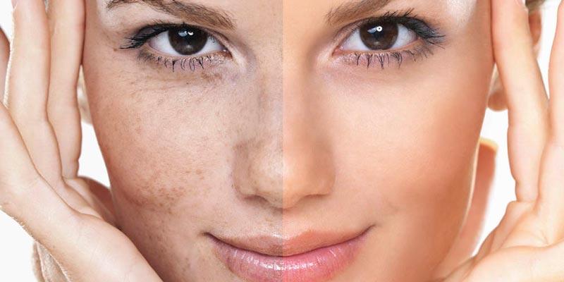 Причины и способы избавления от пигментных пятен на лице