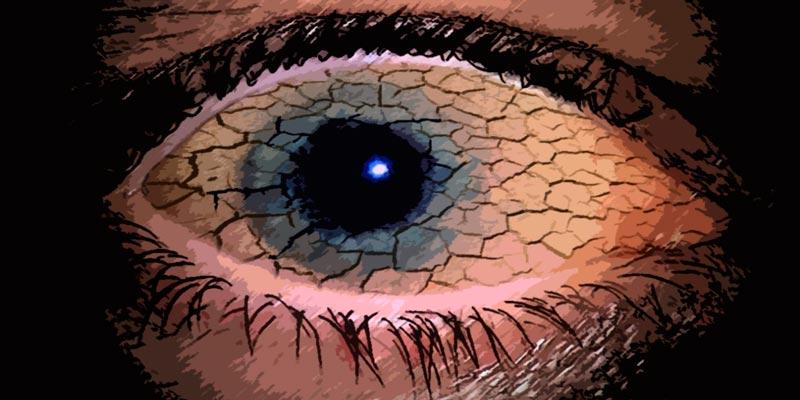 Синдром сухого глаза: симптомы, причины и способы лечения