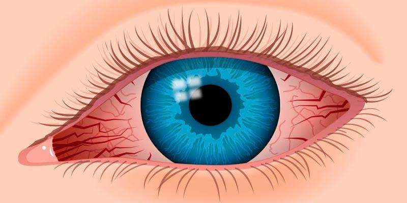 Что это такое синдром сухого глаза