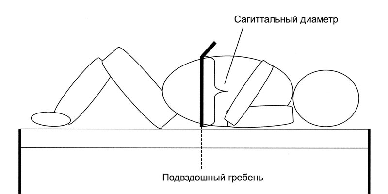 Измерение сагиттального диаметра