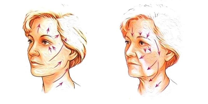 Снижение эластичности и упругости кожи