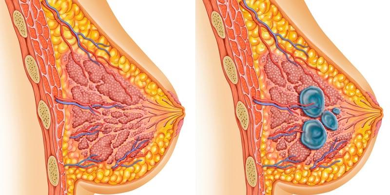 Женская грудь схематично: здоровая и с мастопатией