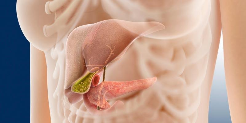Панкреатит: симптомы, лечение, причины и диета