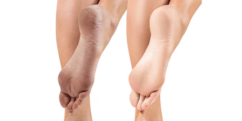 Трещины на пятках: причины, лечение в домашних условиях